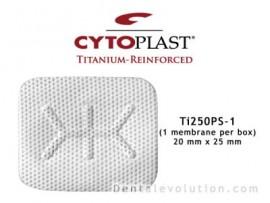 Ti-250 Posterior Singles (1 membrane per box)